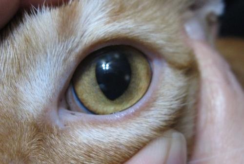 Здоровый глаз после язвы роговицы