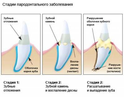 Прогрессия зубного камня